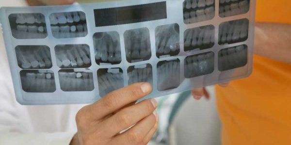What Is A Root Canal And How Does It Help?