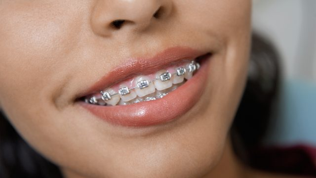How to reduce the pain of braces