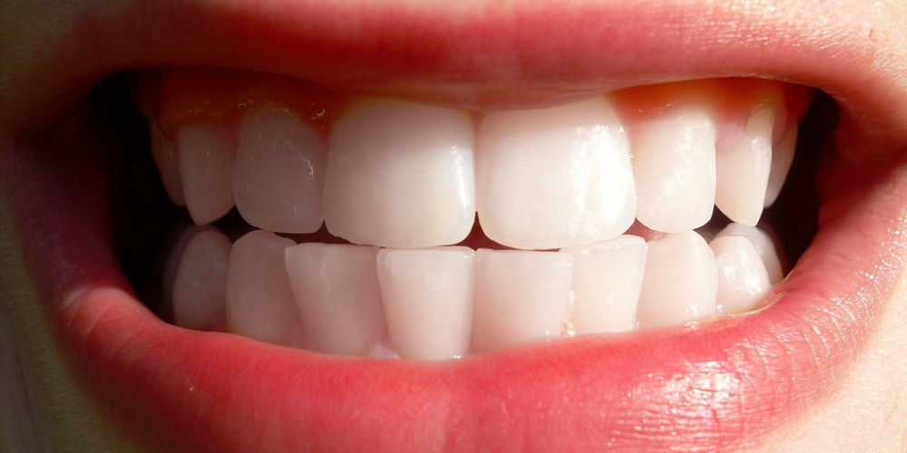 Oral Hygiene Issues And What A Good Dentist Can Do For You