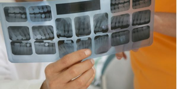 Different Types of Fillings and Why You May Need Them