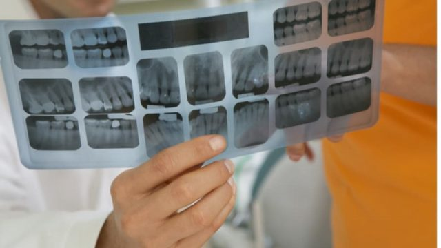 What Type of Fillings You Need