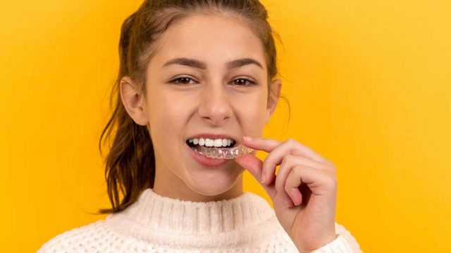 How Clear Aligners Can Improve Oral Health