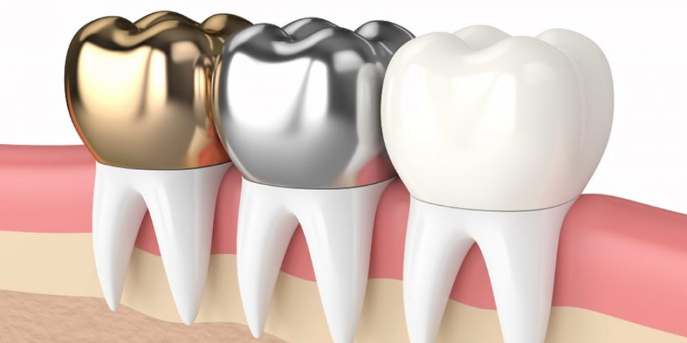 Types of Dental Crowns <br><span class='secondtitle'>From your Dentist near San Marcos TX</span>