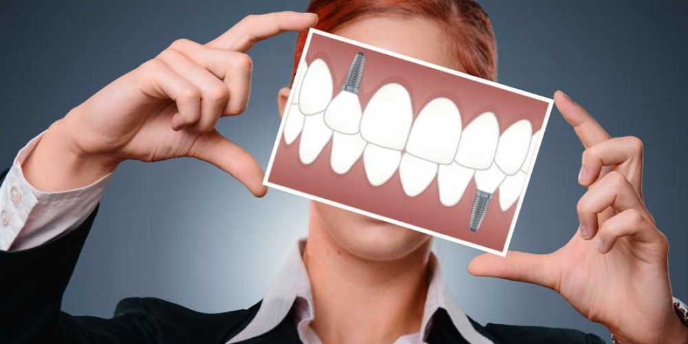 The Benefits & Installation Process of Dental Implants