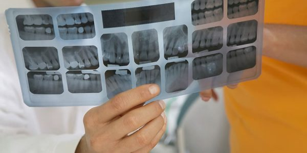 Calcium Deficiency <br><span class='secondtitle'>A Primer from Your Local Dentist in San Marcos TX</span>