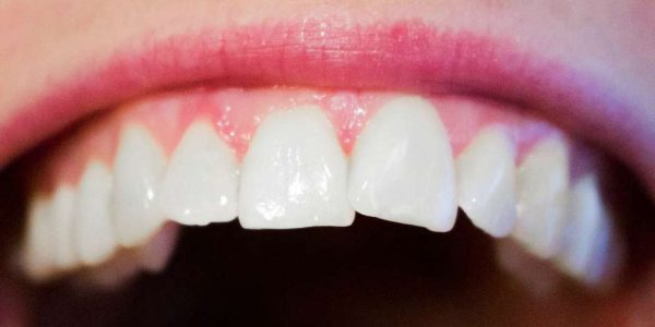 Keeping Your Gums In Good Health