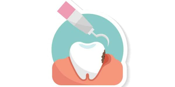 Tips to Help Prevent & Treat Tooth Decay