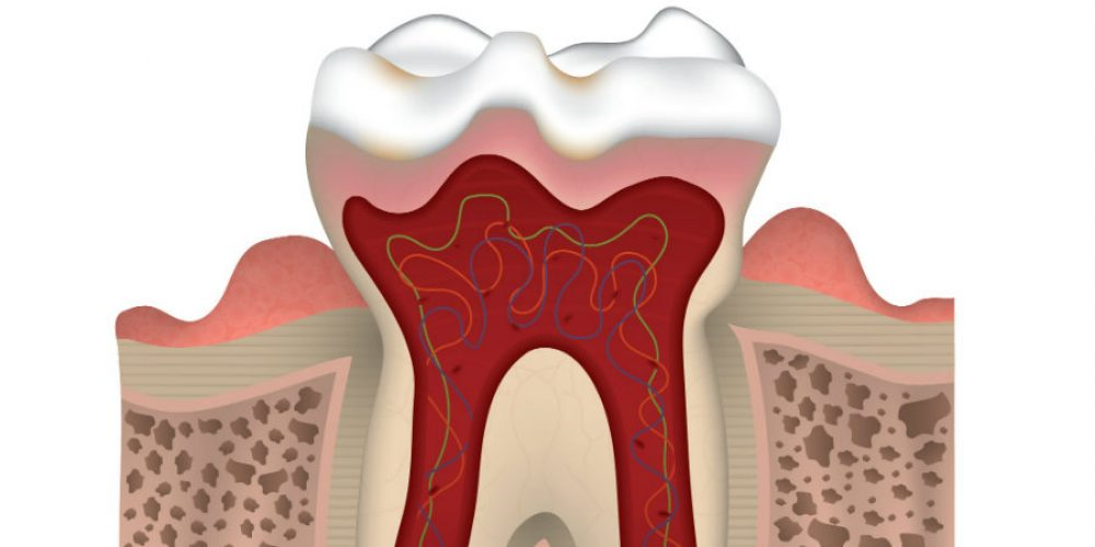 Why Do My Gums Bleed?