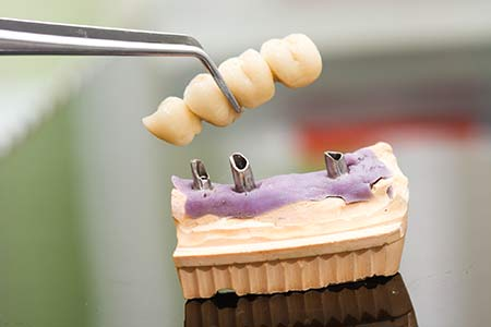 Advanced Dental Procedures: Dental Bridges
