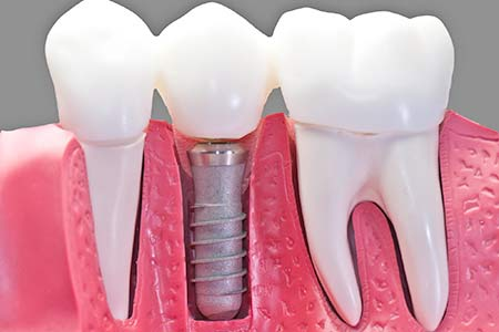 Advanced Dental Procedures: Dental Implants