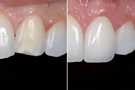 Dental Health Veneers San Marcos, TX